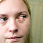 Rånarna sprutade lim i hennes ögon
